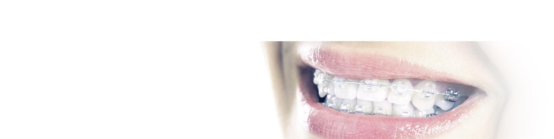 ortodoncia-n